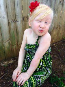 Albinism_Talanoa